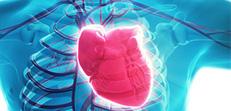 Myocardial Infarction-1