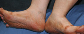 peripheral-vascular-disease